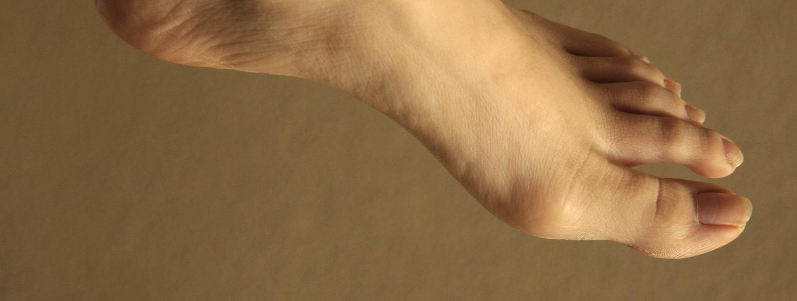 Ушибла палец на ноге что делать фото