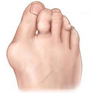Arthritic foot