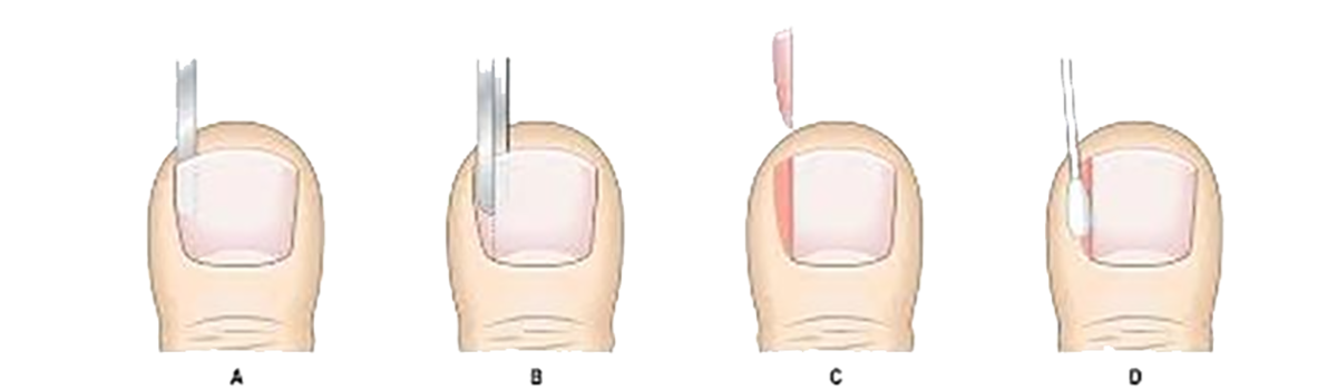 Ingrown Toenail - Podiatric Diagnosis - Cyprus